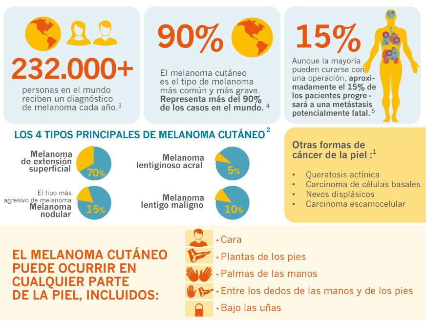 Aprueban novedoso tratamiento para el melanoma | Tusemanario.com